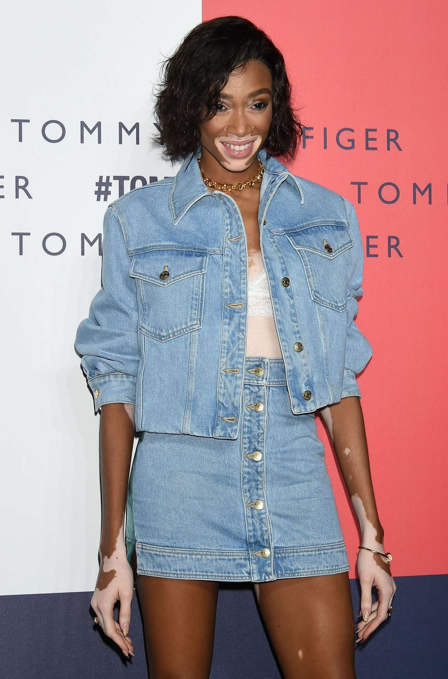 Winnie Harlow – Tommy Hilfiger Presents 'Tokyo Icons' Photocall In Tokyo